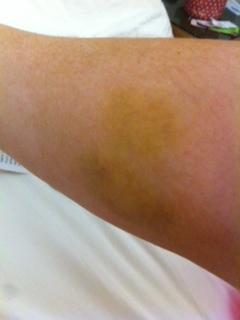 Horse Bite Bruise